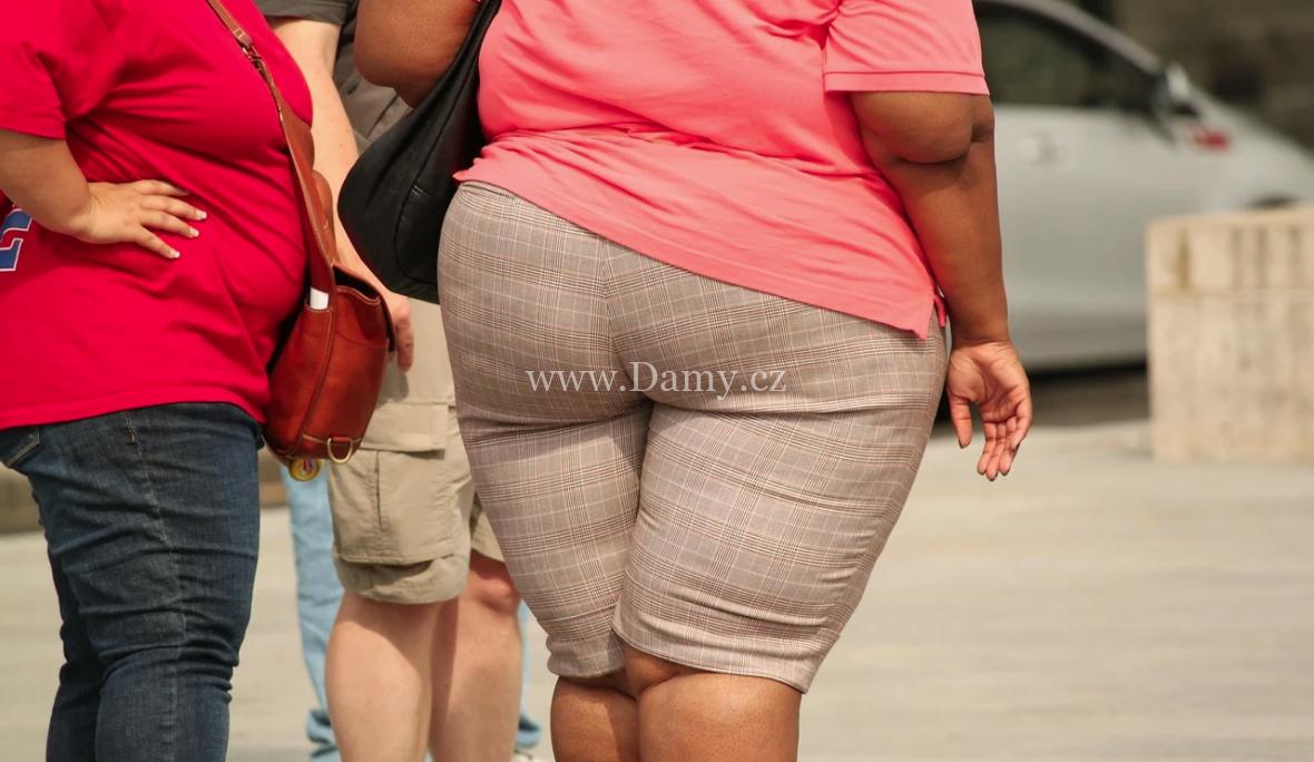 Co je příčinou obezity?